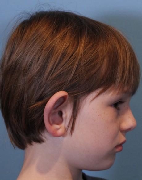Consulta Otoplastia con incisiones mínimas para niños