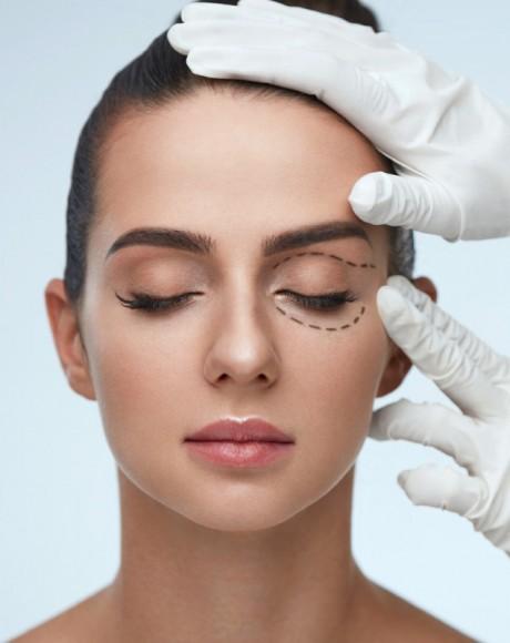 Consulta Blefaroplastia (Cirugía de párpados)