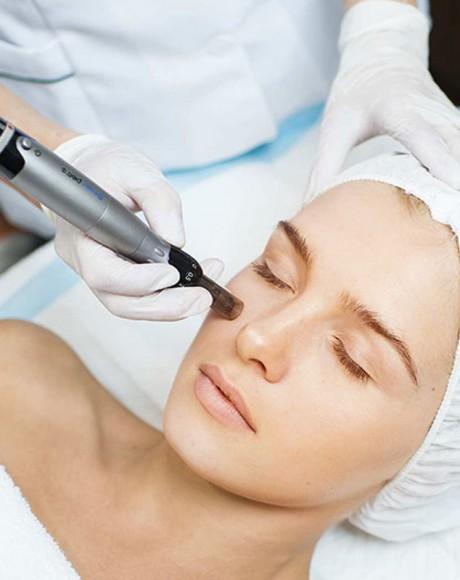 Consulta Corrección de cicatrices (dermapen)