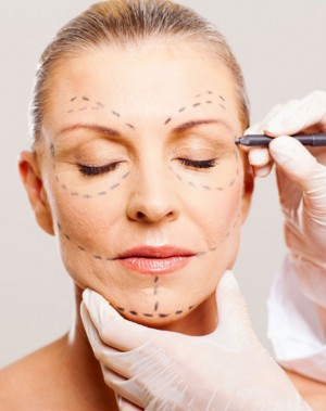 Consulta Lifting Facial
